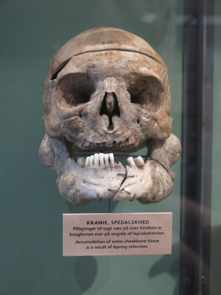 Kranie af spedalsk på Medicinsk Museion