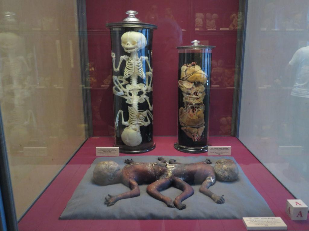 De sammenvoksede tvillinger Martha og Marie på Medicinsk Museion